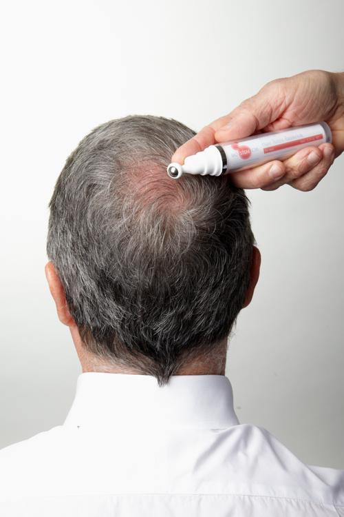 stem cell hair growth factors equipment